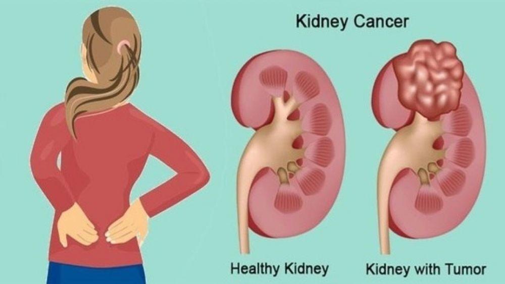 Informasi Tentang Penyakit Kanker Ginjal (Kidney Cancer)