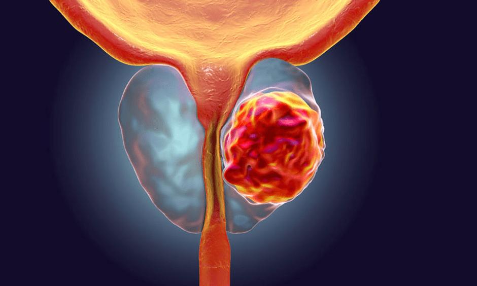 Informasi Tentang Penyakit Kanker Kandung Kemih
