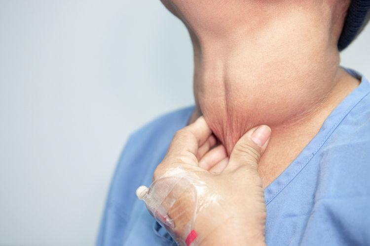 Informasi Tentang Penyakit Kanker Tiroid