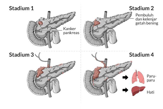 Informasi Tentang Penyakit Kanker Pankreas (Pancreatic Cancer)
