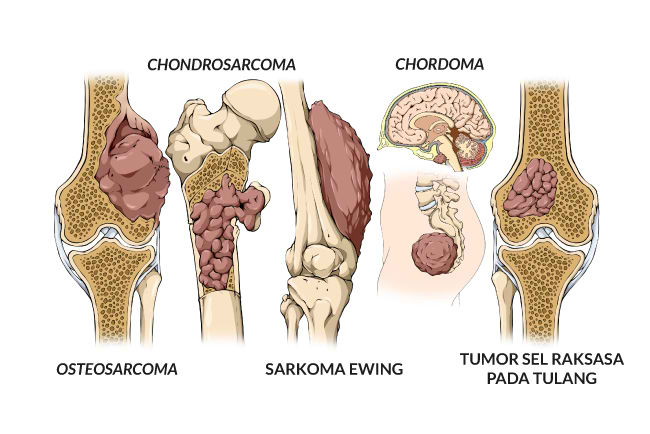 Informasi Tentang Penyakit Kanker Tulang (Sarkoma Tulang)