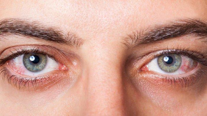 Informasi Tentang Penyakit Kanker Mata (Eye Cancer)